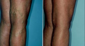 Sclerotherapy2