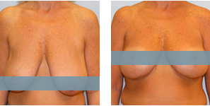 breast-lift-results-sips